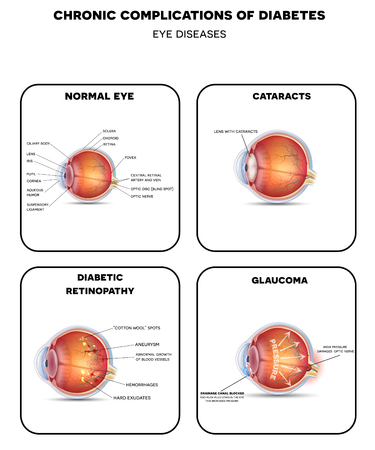 Diabetic Eye Diseases. Diabetic retinopathy,  cataract and glaucoma. Also healthy eye detailed anatomy. Иллюстрация