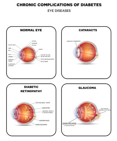 Diabetische oogziekten. Diabetische retinopathie, cataract en glaucoom. Ook gezonde oog gedetailleerde anatomie. Stock Illustratie