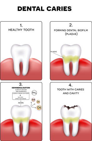 cavities: Dental caries formation, dental plaque, loss of calcium, phosphate and finally caries and cavity Illustration