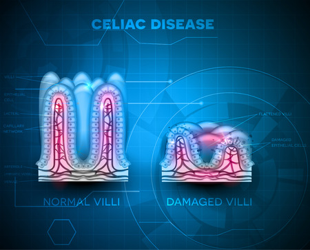 from small bowel: Celiac disease affected small intestine villi. Healthy villi and unhealthy villi with damaged cells on a blue technology background Illustration