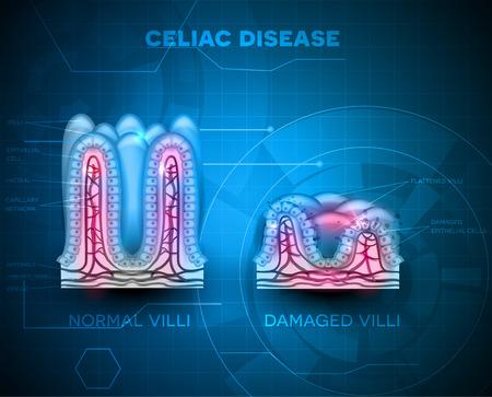 nutrientes: La enfermedad celíaca afecta vellosidades del intestino delgado. vellosidades saludable y no saludable vellosidades con células dañadas en un fondo azul de la tecnología