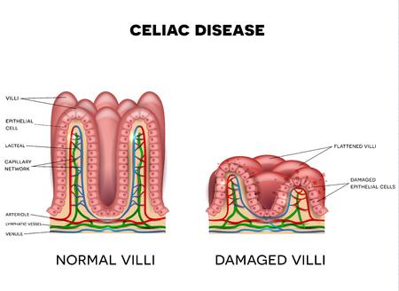 체강 질병은 흰색 바탕에 작은 창자에 영향을 미쳤습니다. 손상된 세포가있는 건강한 villi와 건강에 해로운 villi