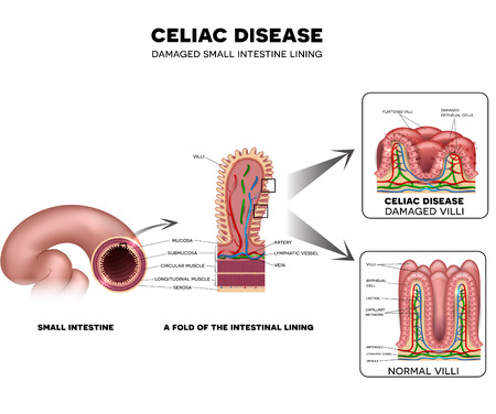 gut: Celiac disease Small intestine lining damage. Healthy villi and damaged villi. Small intestine, a fold of the intestinal lining and villi. Illustration