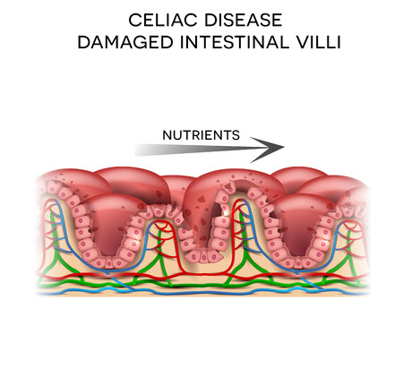 Celiac disease affected small intestine villi. Damaged cells by body's reaction to gluten. Intestinal villi do not absorb nutrients because of reduced surface area.