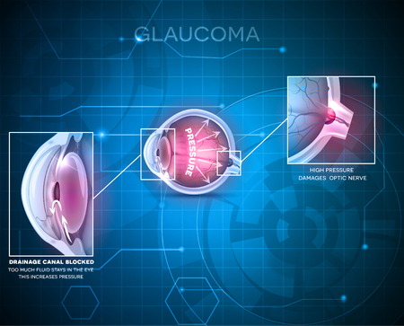 optic nerve: Glaucoma eye disorder abstract blue technology background Illustration