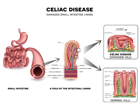 Celiac disease detailed anatomy, healthy intestinal villi and damaged unhealthy villi. Intestinal villi do not absorb nutrients because of reduced surface area.
