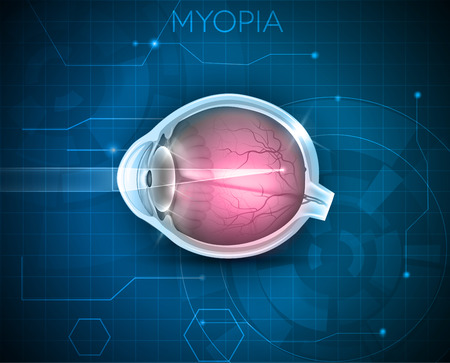 far sighted: Myopia, vision disorder on a blue technology background. Myopia is being short sighted (near sighted). Far away object seems blurry. Illustration