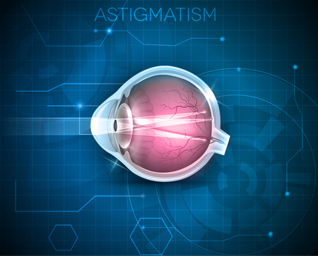 eye cross section: Astigmatism, eyesight problem, blurred vission. Anatomy of the eye, cross section on a blue technology background Illustration