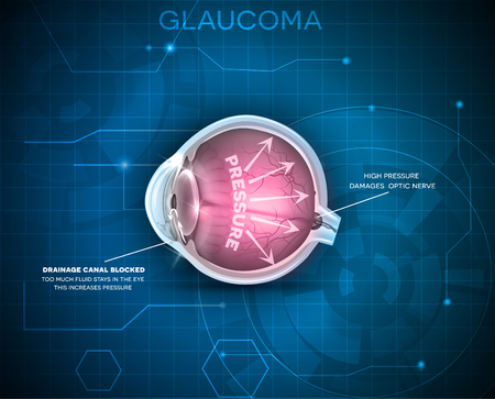 normal: Glaucoma, vision disorder. Detailed anatomy of Glaucoma, eye disorder on a blue technology background. Illustration