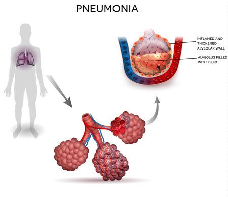 Longontsteking illustratie, menselijk silhouet met longen, close-up van de longblaasjes en ontstoken alveoli met vloeistof binnen. Vector Illustratie
