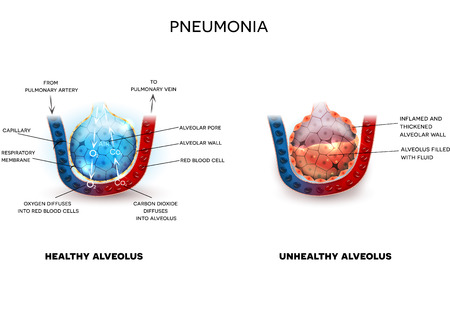 capillaries: Pneumonia illustration, alveoli with fluid and healthy Alveoli, oxygen and carbon dioxide exchange between alveoli and capillaries. Illustration