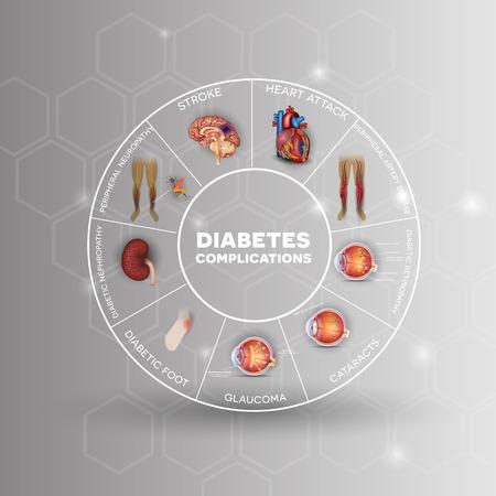 Diabetes getroffen gebieden info graphic wiel. Diabetes treft zenuwen, nieren, ogen, bloedvaten, het hart en de huid.