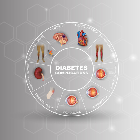 Diabetes affected areas info graphic wheel. Diabetes affects nerves, kidneys, eyes, vessels, heart and skin. Illustration
