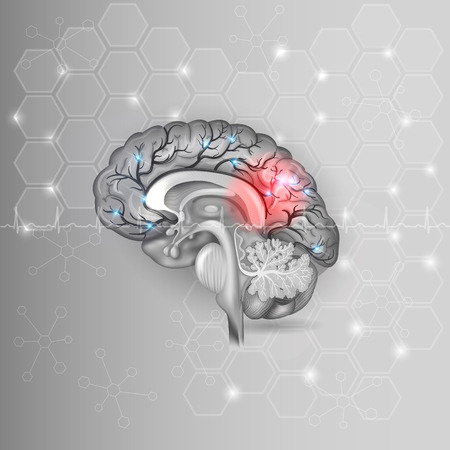 insult: Human brain with red light abstract grey hexagon background and normal cardiogram Illustration