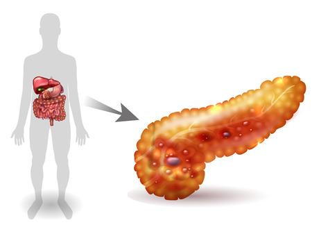 Pancreatitis illustration, inflammation of pancreas on a white background. Human silhouette and internal organs. Illustration