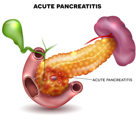small intestine: Pancreatitis illustration, inflammation of pancreas and other surrounding organs on a white background