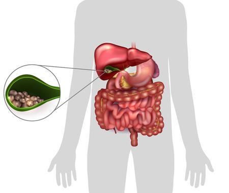 담낭에 담석, 인간의 실루엣과 주변 장기의 해부학. 일러스트