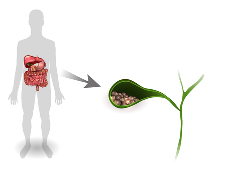 Gallstones in the Gallbladder, anatomy bright detailed illustration