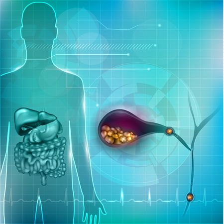 Stones in the Gallbladder and human silhouette with surrounding organs bright detailed illustration on an abstract technology mesh background and light cardiogram