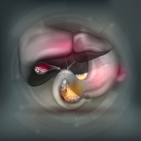 gallstones: Stones in the Gallbladder and anatomy of surrounding organs bright detailed illustration on an abstract technology mesh background Illustration
