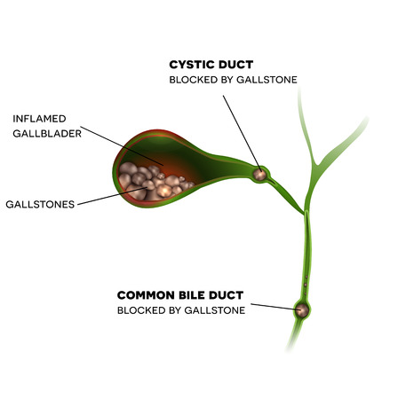 Gallstones in the Gallbladder, cystic duct and common bile duct, inflamed gallbladder.