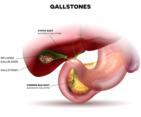 Piedras en la vesícula biliar y la anatomía de otros órganos circundantes Foto de archivo - 67656536
