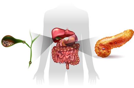 Galstenen in de galblaas en acute pancreatitis, anatomie heldere gedetailleerde illustratie.