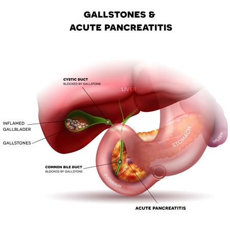 pancreatitis: Gallstones in the Gallbladder and acute pancreatitis, anatomy bright detailed illustration.