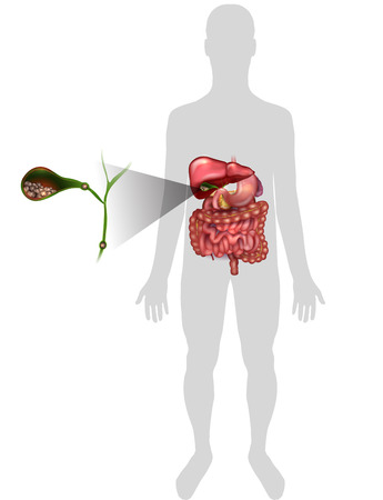 gallstones: Gallstones in the Gallbladder, anatomy bright detailed illustration. Illustration