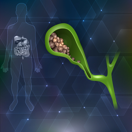 gall bladder: Gallstones and human silhouette with internal organs abstract hexagon background