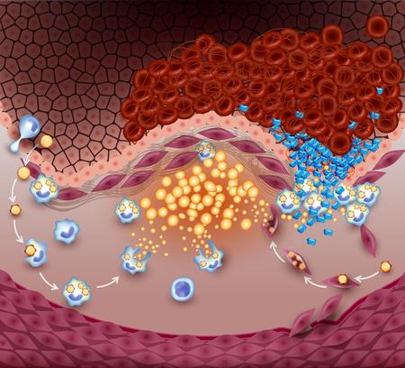 Thrombus, caillot de sang, formation de plaque instable dans l'artère. Explosion de plaques anatomie détaillée illustration. Diagramme de l'évolution de l'athérosclérose jusqu'à la rupture de la plaque. Vecteurs