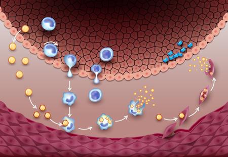 Premiers signes d'athérosclérose, stade très précoce. Formation de stries graisseuses dans l'artère. Cela peut entraîner une thrombose, la formation d'un caillot de sang à l'intérieur de l'artère.