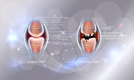 Damaged joint and normal joint design on an abstract grey glowing background