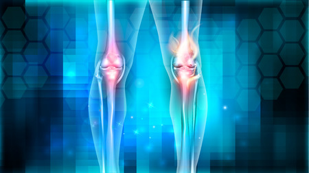 infected: Joint problems bright abstract design, burning damaged knee Illustration