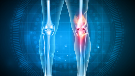 Joint problems bright abstract design, burning damaged knee Ilustrace