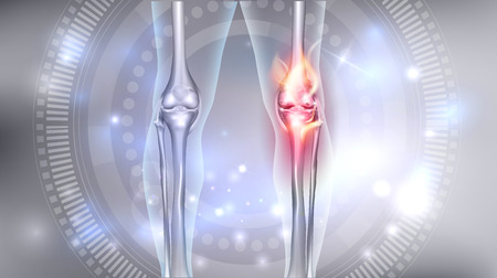 Joint problems bright abstract design, burning damaged knee Vectores