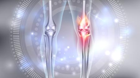 Wspólne problemy jasny abstrakcyjny wzór, pieczenie uszkodzonego kolana