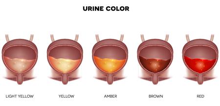 Diagrama de color de la orina desde amarillo claro hasta rojo. La vejiga urinaria detalla la anatomía y la orina en el interior.