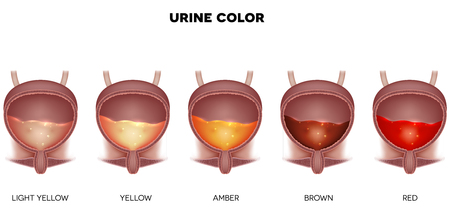 Urine color chart from light yellow till red color. Urinary bladder detailed anatomy and urine inside.