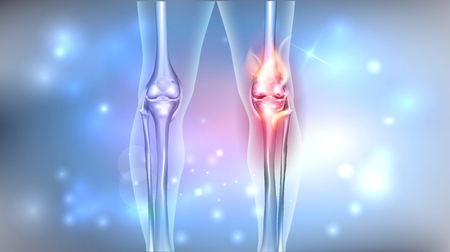Damaged painful joint bright design on an abstract glowing background. Illustration