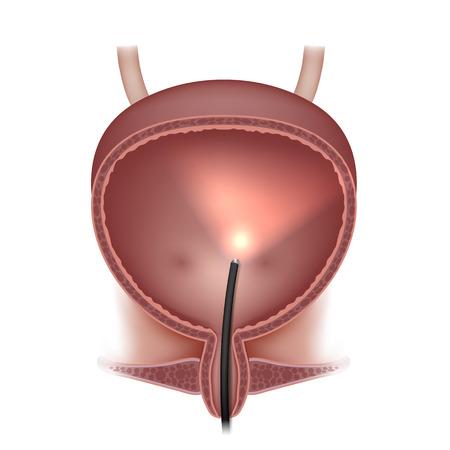 Urinary bladder examination Illustration