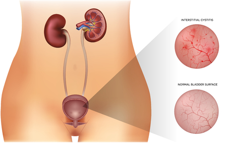 Kidneys and urinary bladder healthy lining and unhealthy inflamed lining with cystitis on a white background Illustration