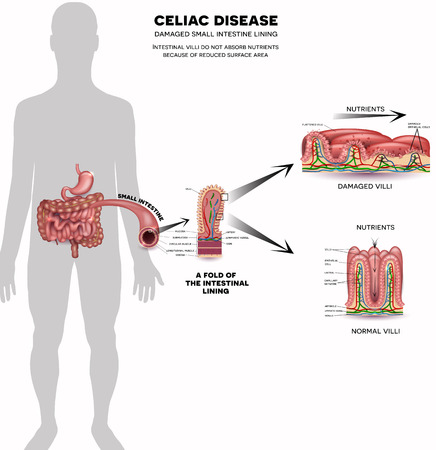 Celiac disease affected small intestine villi. Damaged cells by bodys reaction to gluten. Intestinal villi do not absorb nutrients because of reduced surface area. Healthy villi and unhealthy villi on a white background.