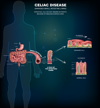 Celiac disease affected small intestine villi. Damaged cells by bodys reaction to gluten. Intestinal villi do not absorb nutrients because of reduced surface area. Healthy villi and unhealthy villi. Illustration