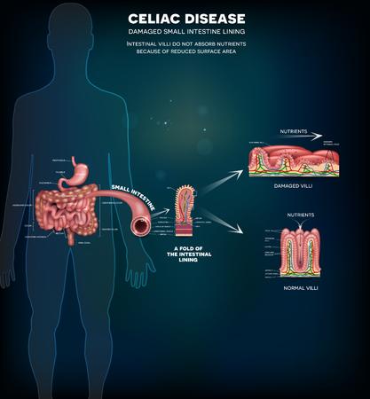 La Enfermedad Celíaca Afecta Las Vellosidades Del Intestino Delgado ...