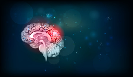 Human brain problems. Abstract dark background with glow