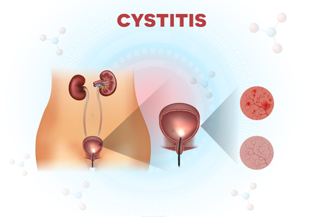 Anatomía del sistema urinario, examen de la vejiga urinaria, revestimiento normal y no saludable con cistitis en un fondo científico abstracto claro