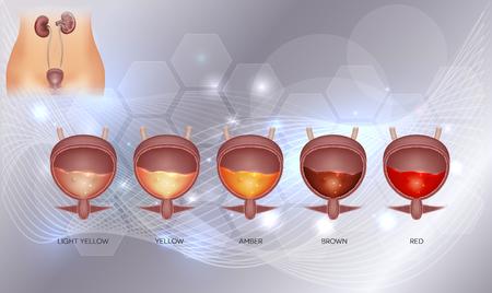 尿膀胱と様々な尿の色は、淡黄色から赤色まで。抽象的な輝く背景の中の尿膀胱詳細解剖学および尿