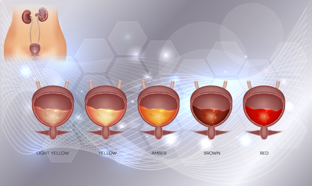Urinary bladder and various urine colors from light yellow till red color. Urinary bladder detailed anatomy and urine inside on an abstract glowing background