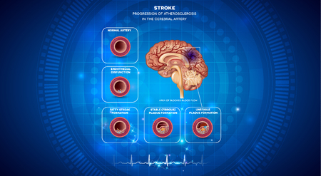 Stroke, blood clot formation in the brain artery, brain damage. Abstract blue technology background with cardiogram.